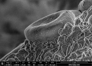 Scanning electron micrograph of a fragment of a fibrin clot in whole blood Image: public domain