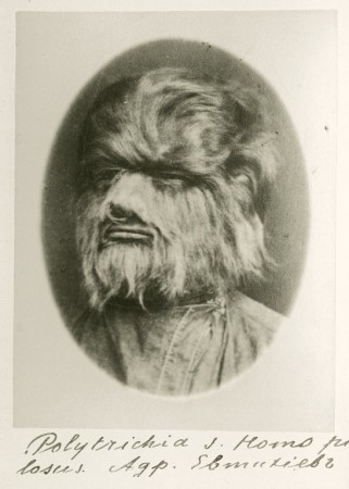 A man with hypertrichosis. (U.S. National Library of Medicine, National Institutes of Health, Health & Human Services)