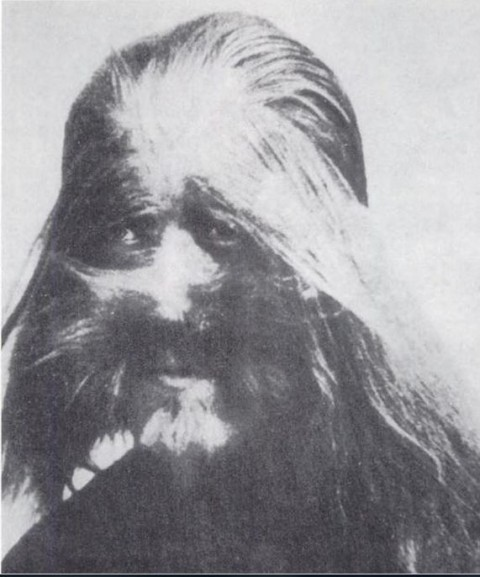 """A photo of Li Baoshu who was born with the condition hypertrichosis, also known as """"werewolf syndrome,"""" that causes excessive hair growth. The picture was on display at Beijing's zoo in the 1920s. (Public Domain)"""