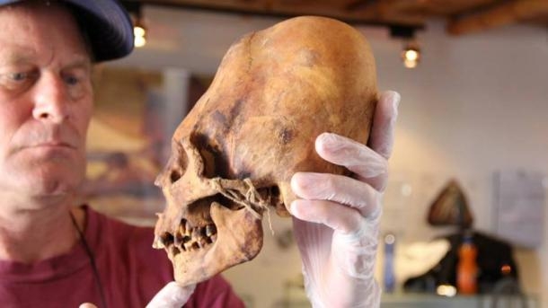 Brien Foerster with an elongated skull. Image from his Facebook page Brien Foerster với một hộp sọ kéo dài. (Ảnh: Facebook cá nhân)