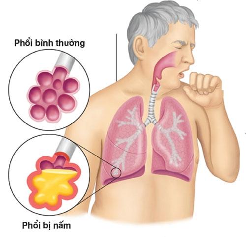 Ho khan, khó thở: Coi chừng nhiễm nấm phổi